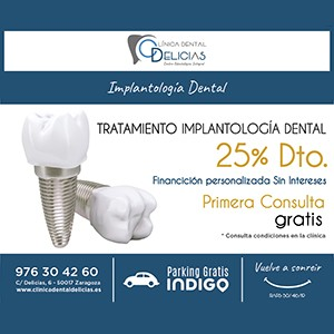 Tratamiento en implantología dental